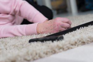 Stürze im alter – Häufigkeit Folgen Ursachen und Prävention